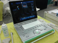 3D Laptop Ultrasound Scanner Color Doppler Machine With Large Volume Hardisk