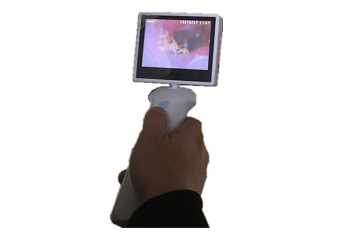 USB Digital ENT Scope Removable Rechargeable Lithium Battery LCD Screen Ear Camera